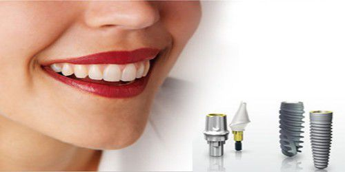 Cấy ghép Implant 5D