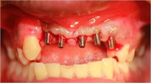 dia-chi-cay-ghep-implant-5d-uy-tin2