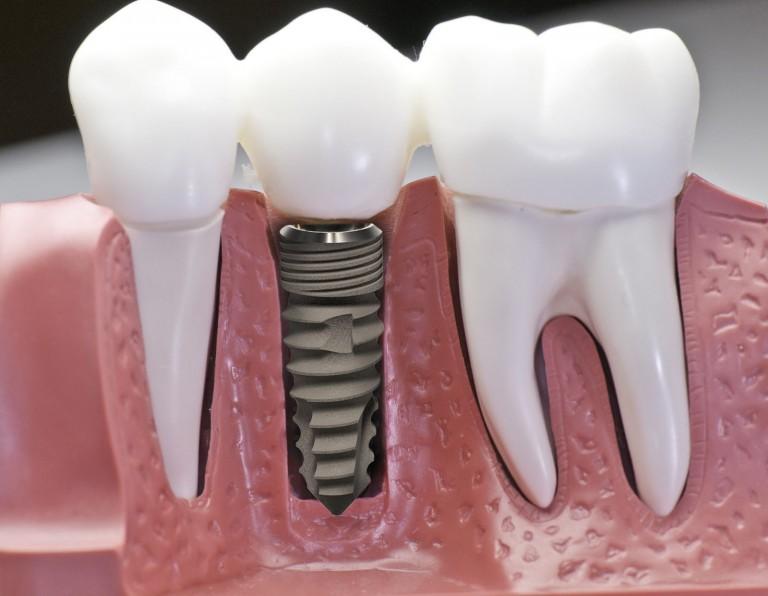 chi phí cấy ghép răng implant