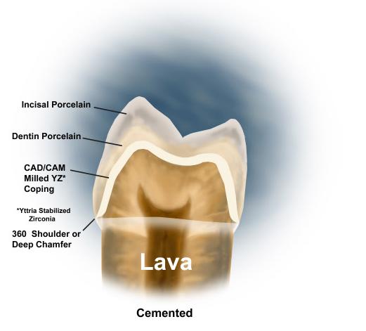 lava-3m-2