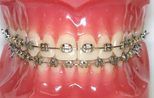 Niềng răng mắc cài kim loại là phương pháp mang tính phổ biến và truyền thống