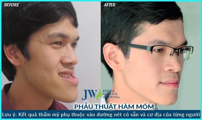 nieng-rang-mom2