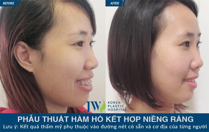 nieng-rang-clear-aligner-tham-my-uu-troi-tu-khay-nieng-vo-hinh