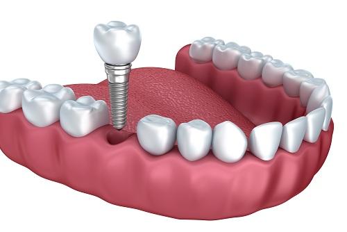 Cấy ghép implant bằng trụ implant