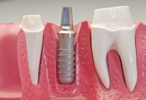 Công nghệ cấy ghép implant hiện đại