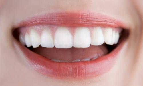 Công nghệ cấy ghép implant mang lại vẻ đẹp tự nhiên cho hàm răng
