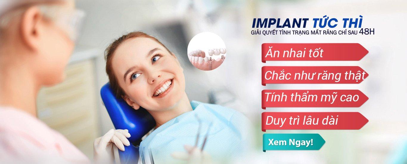 Cấy Ghép Implant 2017