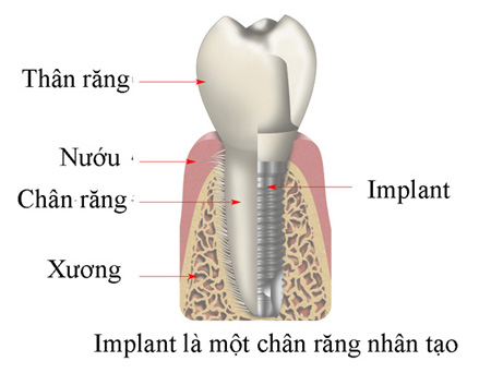 cay-ghep-implant-su-dung-duoc-trong-vong-bao-lau