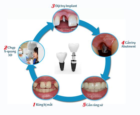 cay-ghep-implant-co-dau-va-nguy-hiem-khong-jpg3
