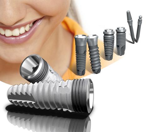 cay-ghep-implant-nuoc-co-tot-khong-va-chi-phi-bao-nhieu