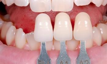 Phương pháp bọc răng sứ và chi phí phải chi trả là bao nhiêu?