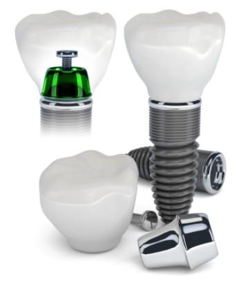 cong-nghe-cay-ghep-implant-nuoc-gia-bao-nhieu-tien