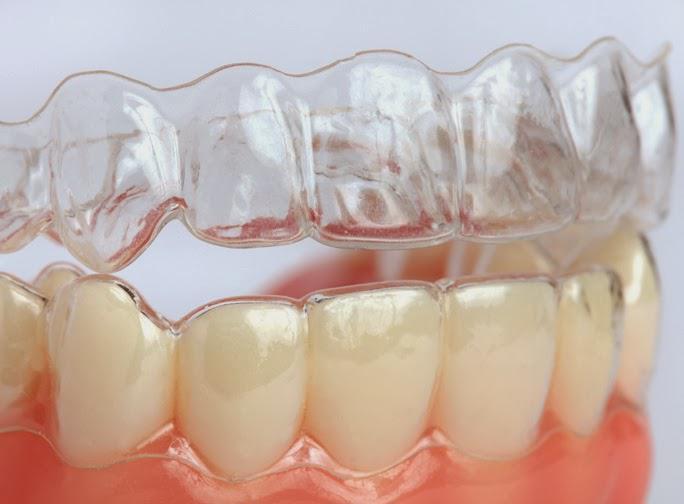 Hiểu đúng về khay niềng răng Invisalign trong suốt