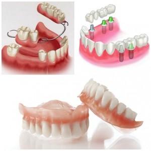 so-sanh-ham-gia-thao-lap-va-cay-ghep-implant-jpg2