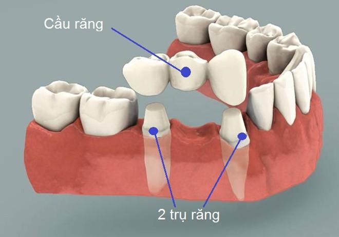 so-sanh-phuong-phap-lam-cau-rang-voi-cay-ghep-implant-1