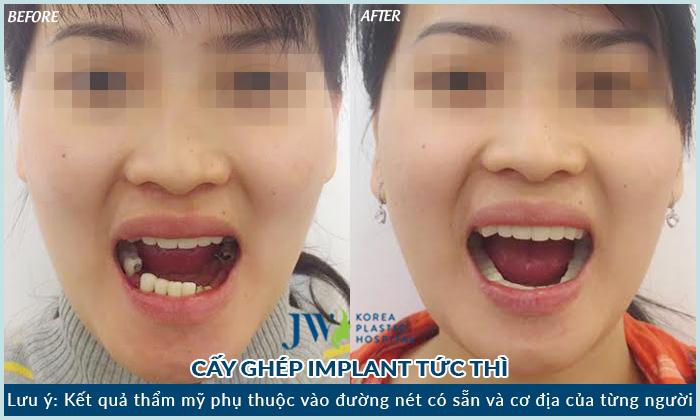 nhung-yeu-giup-trong-rang-implant-khong-dau