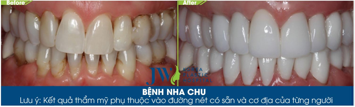 tra-loi-ban-benh-nha-chu-co-chua-duoc-khong