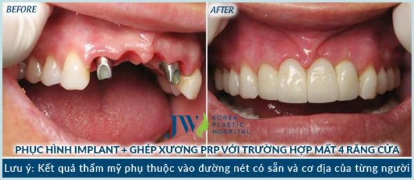 cay-ghep-implant-nha-khoa-jw