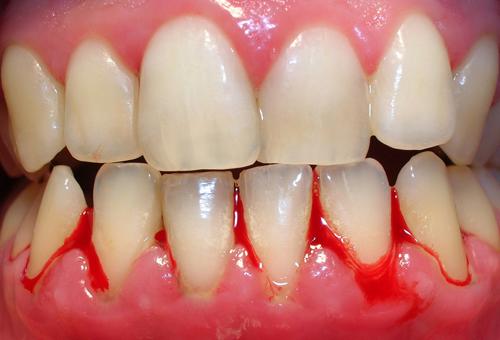 Hiện tượng chảy máu chân răng do đâu