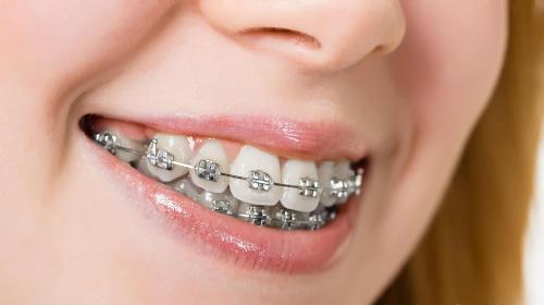 Công nghệ niềng răng và những điều cần biết