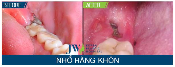 co-nen-nho-mot-luc-3-rang-khon-duoc-khong