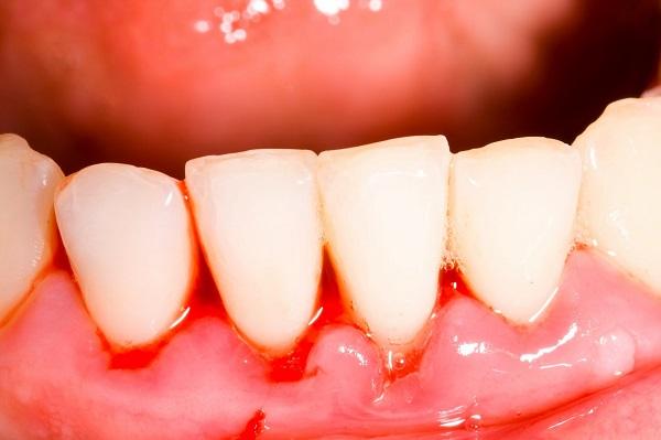 Cách chữa chảy máu chân răng tại nhà