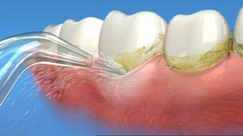 Cạo vôi răng có nguy hiểm không