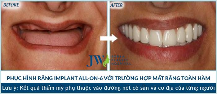 Những lợi ích của việc phục hình răng sứ