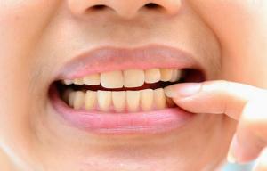 Có thể thấy rằng hàm răng đổi màu là tác nhân gây phiền toái đến cuộc sống của chúng ta, từ việc cười nói đến giao tiếp tất cả dường như đều trở nên khó khăn hơn bao giờ hết. Thậm chí tâm lý bạn không được thoải mái khi tiếp xúc với mọi người xung quanh. Do đó, để cải thiện hàm răng xấu xí kia, điều đầu tiên bạn nên làm là vệ sinh răng miệng đúng cách và tiến hành tẩy trắng răng. Ngoài ra, nên chú ý đến việc ăn uống kỹ càng hơn.