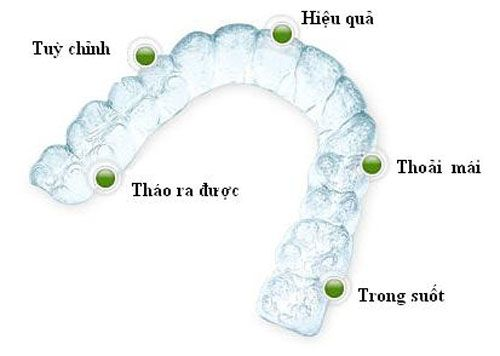 khay niềng răng invisalign trong suốt, niềng răng trong suốt invisalign