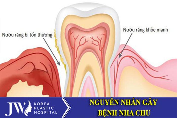 Bệnh nha chu hình thành khi nướu răng bị tổn thương