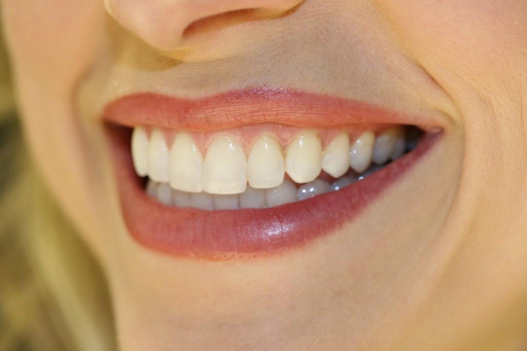 Kết quả hình ảnh cho lựa chọn sao cho khi gắn mão răng sứ
