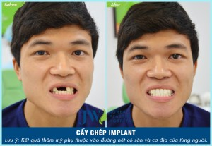 cay-gep-implant