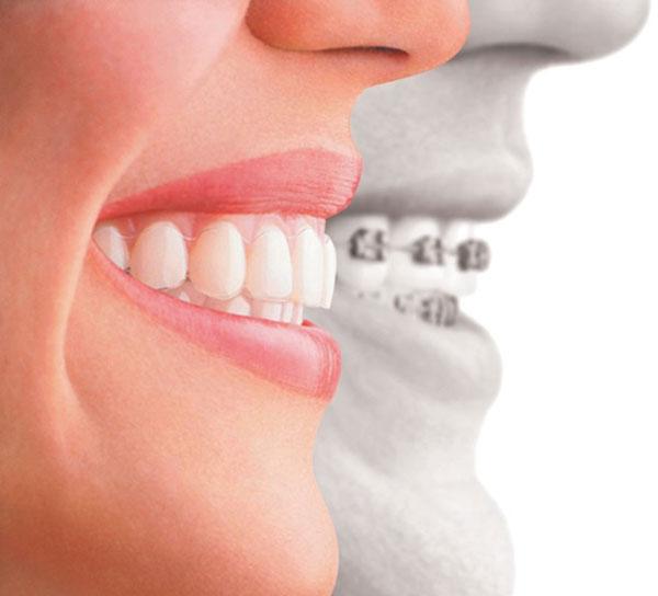 - Nỗi lo lắng khi niềng răng có phải nhổ răng hay không.