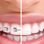 Niềng răng thanh toán theo đợt – Giải pháp tiết kiệm chi phí khi chỉnh nha