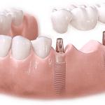 Cấy ghép implant có gây tác hại gì không