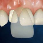 Mặt giá sứ Veneer là gì – giải pháp nhanh cho răng hàm khuyết điểm