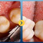 tẩy trắng răng hết bao nhiêu tiền – Nha Khoa Hàn Quốc