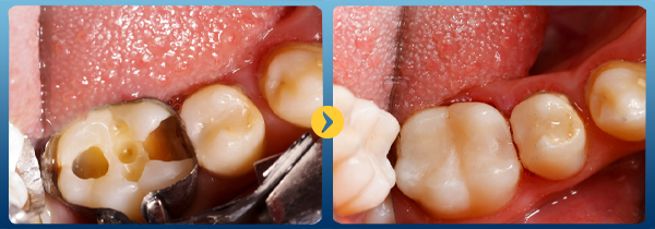 Bọc răng sứ đối với trường hợp răng sâu nặng cùng lỗ sâu to rộng