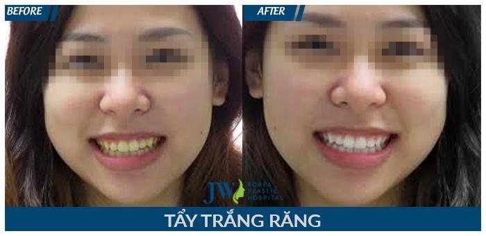 Răng trắng sáng chỉ sau một lần thực hiện tẩy trắng răng tại JW