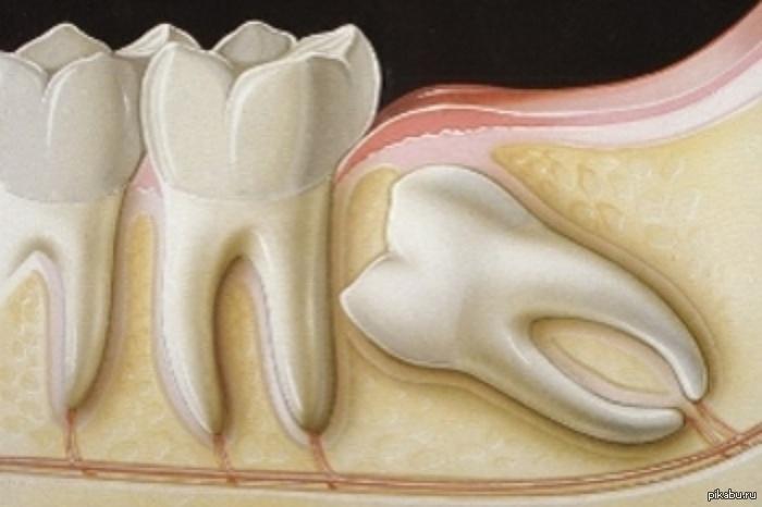 Răng khôn là chiếc răng phiền toái nhất trên cung hàm