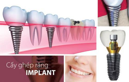 Phục hình răng bị mất bằng phương pháp cấy ghép implant đem đến hiệu quả vượt trội