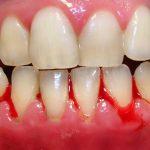Nguyên nhân nướu răng bị chảy máu là gì