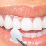 Bọc răng sứ thẩm mỹ – trả lại bạn nét thanh xuân vốn có