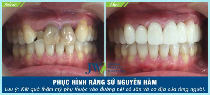 Bọc răng sứ là một trong những dịch vụ nha khoa được nhiều khách hàng tin tưởng và lựa chọn thực hiện