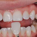 Bọc răng sứ cho răng cửa hô – Giải pháp trị hô hiệu quả
