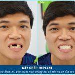 Trồng răng sứ có tốt không và những ưu điểm bạn có biết