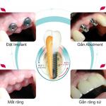 Cấy ghép implant – phương pháp phục hình răng hiệu quả