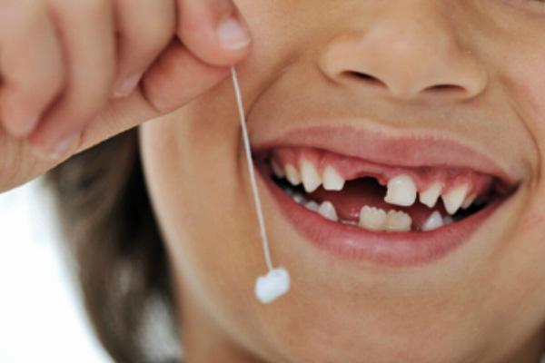 Răng sữa có vai trò quan trọng trong sự hình thành hàm răng của trẻ sau này