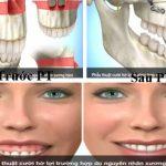 Chữa cười hở lợi – giải pháp trả lại bạn nụ cười duyên dáng